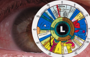 el fraude de la iriddologia